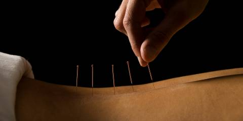 someone receiving acupuncture on their back in a dark room