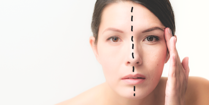 A woman with a before-and-after face