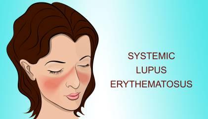 SLE (Systemic Lupus)