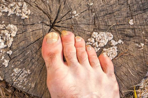 A foot suffering from a fungus infection