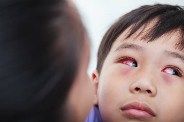 A mother taking care of her young boy with conjunctivitis